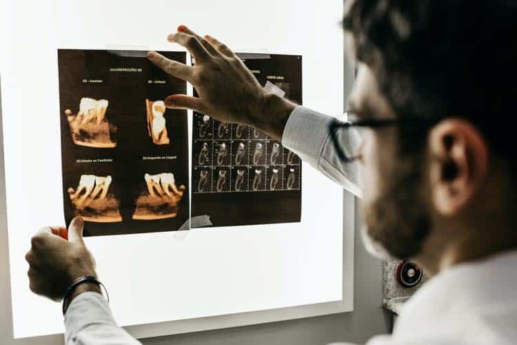 Zahnzusatzversicherung zahn